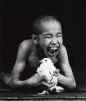 Garçon atteint de la maladie de Minamata. ©Arnau Poveda Mira (Wikimedia Commons)