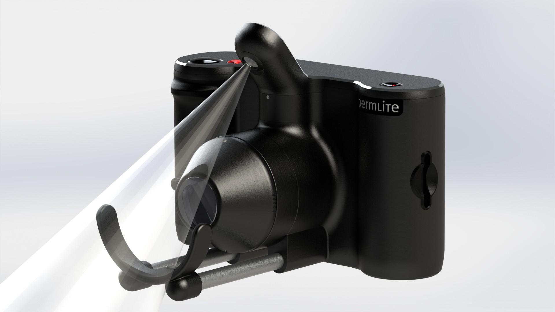 un appareil photo pour combattre les m lanomes. Black Bedroom Furniture Sets. Home Design Ideas